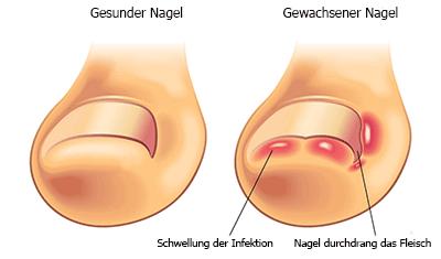 Nützliche Informationen zur Diagnose Nagelpilz der Hausarztpraxis Dr.Thielking in Potsdam